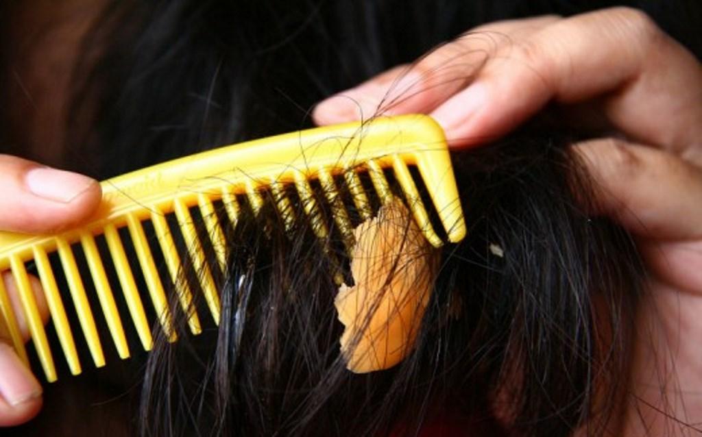 как убрать жвачку с волос вазелином