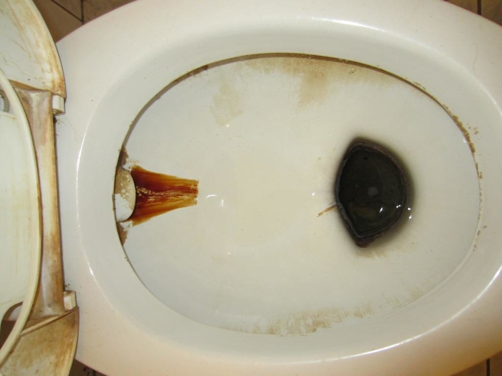 желтизна туалета